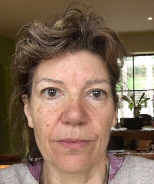 Zdjęcie twarzy po