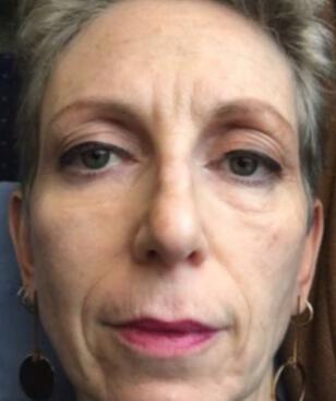Zdjęcie twarzy przed